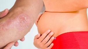 Sedef hastalığı hamilelik sürecini nasıl etkiler?
